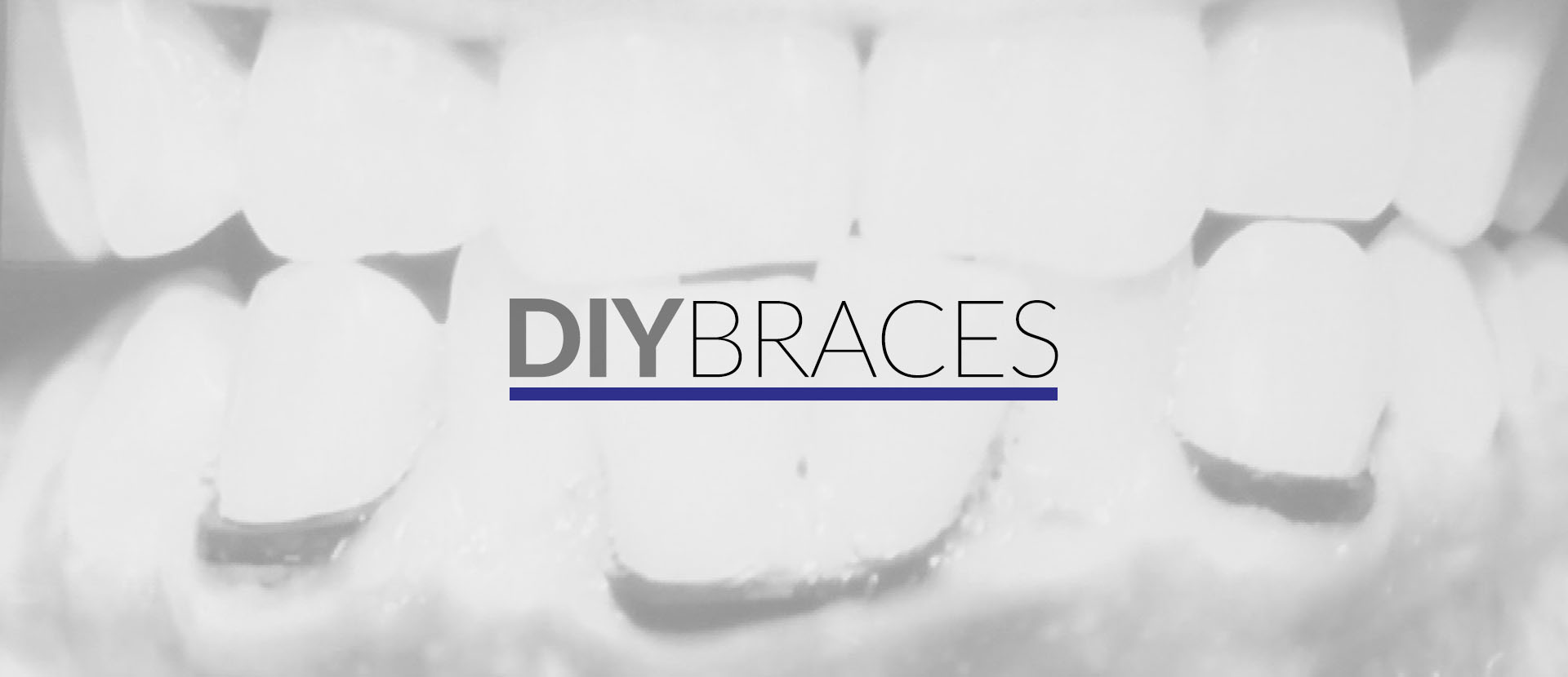 Feature diy braces are do it yourself videos online that supposedly teach you how to fix your teeth on your own but the doctors also say none of the methods are safe solutioingenieria Images