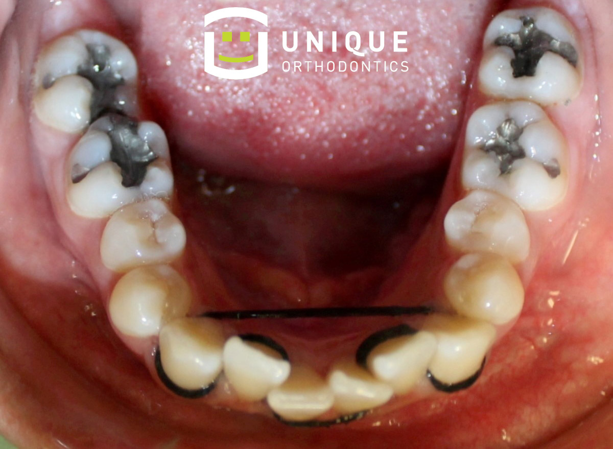 Feature diy braces yourcentralvalley solutioingenieria Image collections