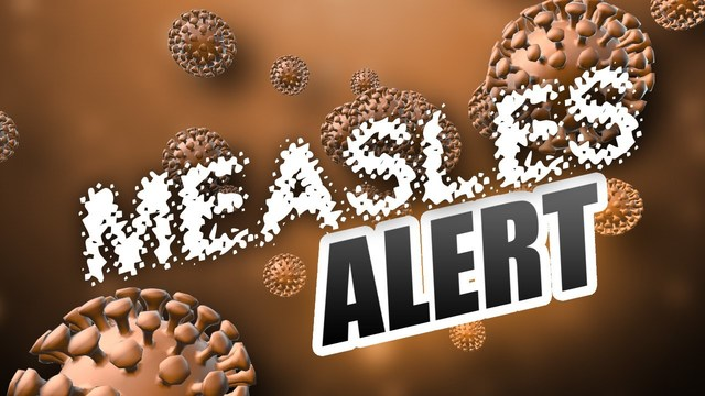 Health officials confirm measles case in Fresno County